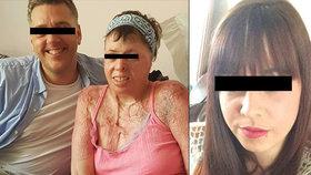 Žena (27) se zastala trpící sousedky: Její přítel ji polil benzinem a zapálil! Když hořela zaživa, tak se usmíval
