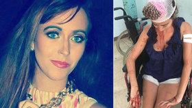 Dívku zbil personál chorvatského hostelu železnými tyčemi. Skončila se zlomeninou a tržnými ranami