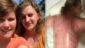 Australan si na Bali zaplatil exotickou masáž. To muselo bolet!