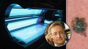Časté návštěvy solária způsobují rakovinu kůže, říká kožní lékař