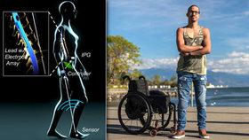 Elektrody v páteři zvedají ochrnuté pacienty zpět na nohy: Vozíčkáři znovu chodí