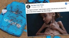 Holčičku Amal ve válkou zmítaném Jemenu se hlady protrápila až k smrti