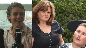 Mladík, který ochrnul po snědení slimáka, zemřel.