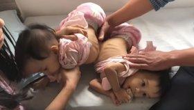 Australští doktoři od sebe úspěšně oddělili srostlá siamská dvojčata z Bhútánu