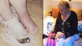 Ruská nemocnice amputovala přeživší holokaustu špatnou nohu.
