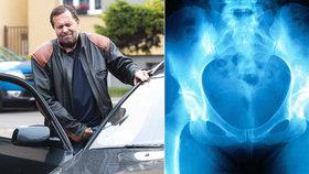 Lékaři odhalili příčinu Pomejeho bolestí: Zlomenina v rozkroku!