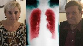 Začíná to kašlem, končí i smrtí: Monika a Jiří mají chorobu plic, ročně zabije 3500 Čechů