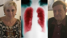 Monika (58) a Jiří (68) mají plicní chorobu