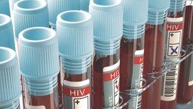 Test na HIV má smysl až zhruba tři měsíce po rizikové aktivitě.
