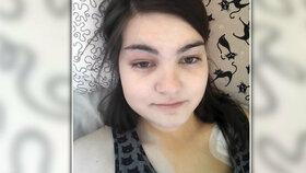 Berenice se projevila ulcerózní kolitida v roce 2017