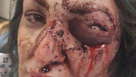 Mladá matka skončila se zlomenou čelistí a oteklým okem
