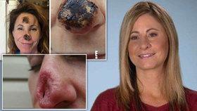 Ženě se rozpustil nos. Po zpackané operaci jí museli udělat nový od základu.
