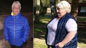 Paní Marie před a po operaci žaludku