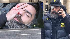 Postřelený vůdce hnutí tzv. žlutých vest Jérôme Rodrigues promluvil o svém zranění. Vyzval k protestům bez násilí.