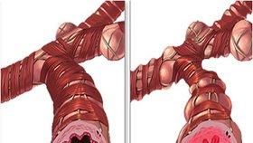 Příznakem astmatu jsou zúžené průdušky.