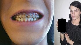 Energický nápoj rozežral mladíkovi zuby