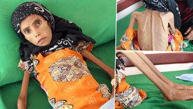Katastrofální dopad války v Jemenu: Dvanáctiletá Fatima trpí extrémní podvýživou.