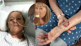 Lékaři Joanně vytvořili nový jazyk ze svalu a žíly z levé ruky