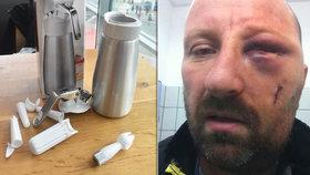 Vladimír Š. (45) z Pardubic varuje: Vybuchl mi v ruce šlehačkovač a rozdrtil mi lícní kost.