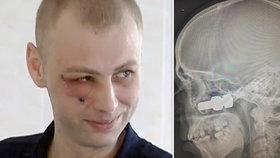 Muže zasáhl do hlavy šroub. Zbyly mu frankensteinské jizvy