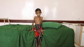 Největší obětí hladomoru v Jemenu jsou děti.