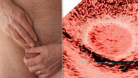 Rakovina varlat může postihnout i patnáctileté hochy, nejohroženější ale jsou muži od 25 do 35 let