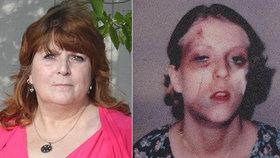 Ženu brutálně zbili a znásilnili: Pětičlenný gang jí chtěl provrtat kotníky a pověsit na hák!