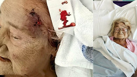 Ženu v nemocnici napadla jiná pacientka kvůli chrápání.