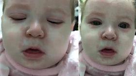 Dítě (sedm měsíců) se nakazilo spalničkami, matka ukázala, jaké problémy to u něj způsobilo.