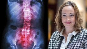 Nina (32) trpí ankylozující spondylitidou, její nemoc jí přináší téměř každodenní bolesti. Navíc je spojená s častějšími záněty v těle