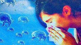Nejčastější jsou alergie na roztoče
