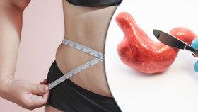 Odpověď na obezitu? Operace žaludku!
