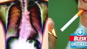 Rakovinou plic ročně onemocní téměř 7000 Čechů.