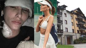 Modelka promluvila o svém zranění