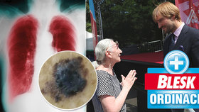Konečný účet Blesk Ordinace: 57 nádorů kůže, 61 plicních nemocí! Lidé vzali prevenci vážně