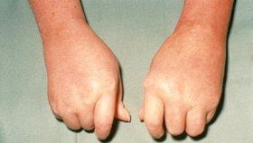 Sklerodermie je závažné onemocnění