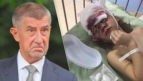 Andrej Babiš si všiml případu pokousané Lucinky.