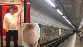 Ladislav Jakl promluvil o napadení v pražském metru. Musel brát prášky na bolest.
