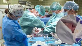 Mozkově mrtvá Eva († 27) z Třebíče porodila po 117 dnech na přístrojích zdravou Elišku. Je to světový úspěch lékařů, sestřiček a zdravotníků ve FN Brno.