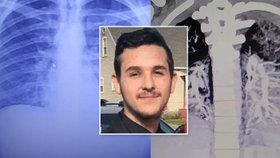 Mladík (19) kouřil dva roky e-cigaretu. Plíce má ve stavu 60letého silného kuřáka