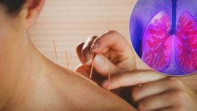 Ženě při akupunktuře propíchli plíci.