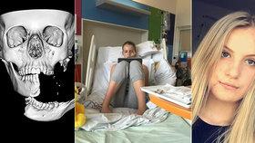 Emily spadla z koně na sloup u vrat: Čelist jí zůstala viset na centimetru kůže tak, že ji držela v rukou!