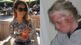 Katie Piperová zveřejnila foto po útoku.