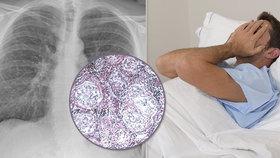 Přemýšlel jsem, kolik času mi zbývá, přiznává Jan (42) Trpí zákeřnou nemocí, která dusí!