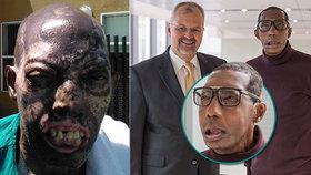 Další úspěch chirurga Pomahače: Jeho tým transplantoval obličej Roberta (68).