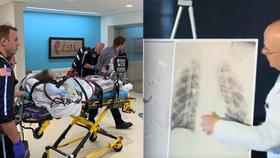 Tým amerických lékařů provedl oboustrannou transplantaci plic.