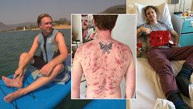 James (32) málem zemřel, když mu penisem do těla vlezl parazit z jezera.