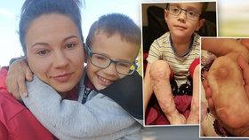 Jakub (4) přišel o prsty na nohou a šest prstů na ruce: Maminka si přeje jediné, aby syn chodil.