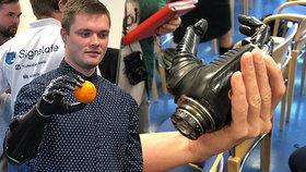 Jakub se narodil s chybějící částí paže, teď má robotickou protézu. Jeho život se s ní významně usnadnil.