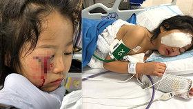 Cecilia Cheová (6) přišla při nehodě o oční víčko.